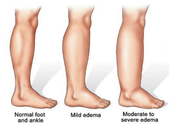 Wearing compression socks can prevent and treat edema