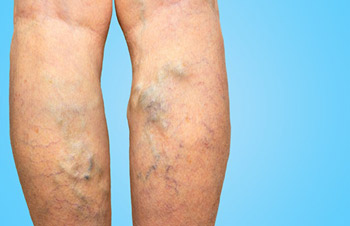 Back of the Legs with severe varicose veins