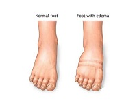 feet-needs-compression-stockings-for-edema