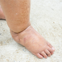 a-man-with-swollen-feet-painful