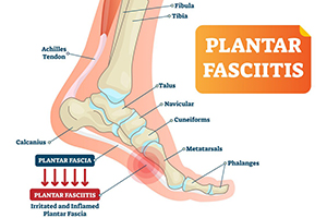 getting a detailed understanding of plantar-fasciitis