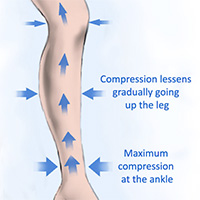 Gradient Compression Socks push blood up the leg to decrease foot, ankle, and calf swelling
