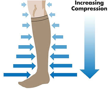 gradual pressure of compression socks reduces swelling