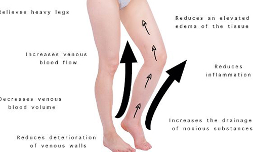 pictures showing medical benefits of compression socks