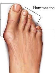 demonstration about hammer toe in feet