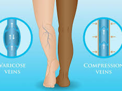 heal varicose veins with wide-calf-pressure-hoses