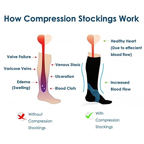 The working principal of compression stockings is based on helping the blood circulation.