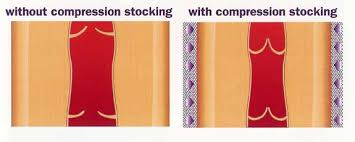 how compression socks help veins keep blood moving