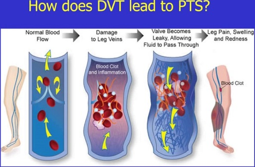 how does DVT lead to PTS?