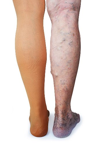 image of deep vein thrombosis and varicose veins needing compression stockings
