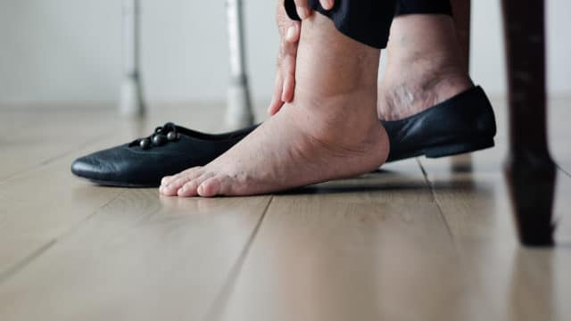 image showing a man with swollen feet - compression socks - Not wearing your swollen feet socks throughout the day won't allow your swelling symptoms to reduce.