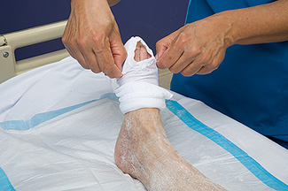 ted stocking of a patient taken off by nurse
