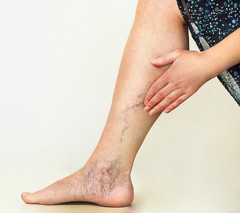 changes on leg and toe due to varicose veins infection