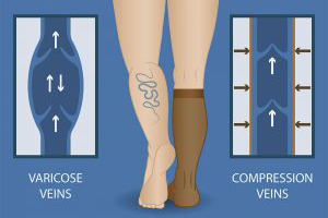 15 – 20 mmHg, 20 – 30 mmHg, or 30 – 40 mmHg knee high or thigh high compression socks improve venous competence