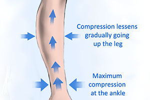 legs compression leg sleeves have high pressure at the ankle