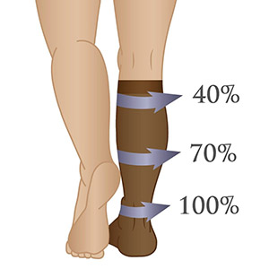 An image showing compression level distribution in pressure socks