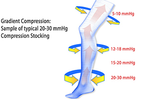 mechanical action of compression socks
