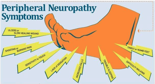 People with peripheral neuropathy should consult their doctor before using compression socks.