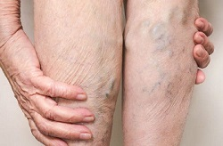 men suffering from pooling of blood in leg due to sitting for longer periods and not wearing knee high compression socks