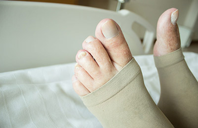 Open Toe Compression Socks for Post Surgery