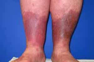prevent lipodermatosclerosis