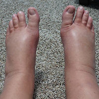 prevention of edema or swelling legs