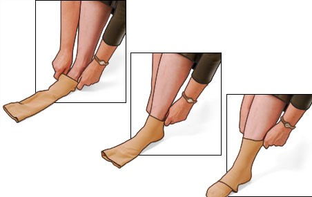 a person wearing compression stockings