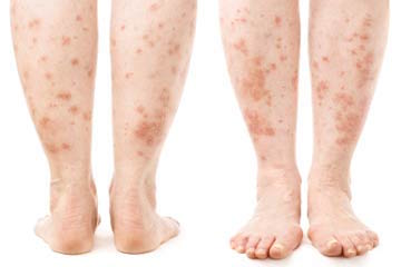 Example of skin disease on legs