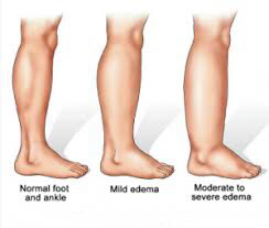 stages of edema