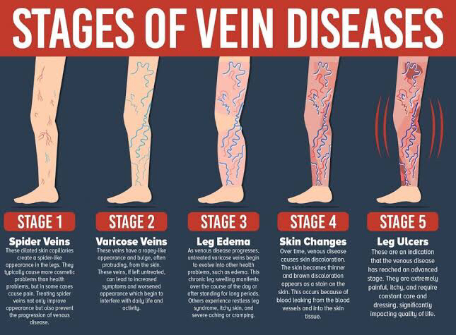 degenerative stages of vein thrombosis