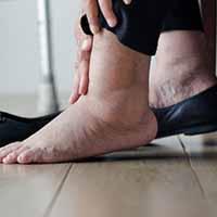 medical hosiery can treat leg swelling