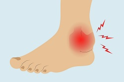 person with sprained ankle, painful ankle
