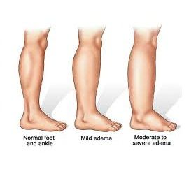 Image showing normal and swollen legs