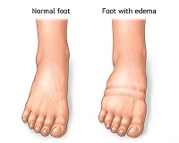 picture of normal feet and feet with edema