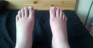 person with swollen feet