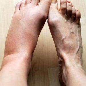 compression socks swollen feet with lymphatic edema