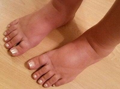 swollen feet, puffy and reddish feet