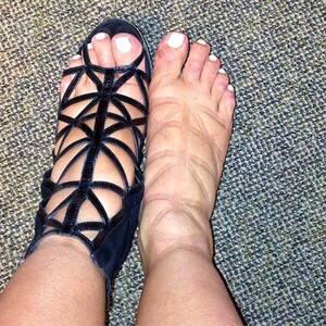 swollen feet kin kardashian