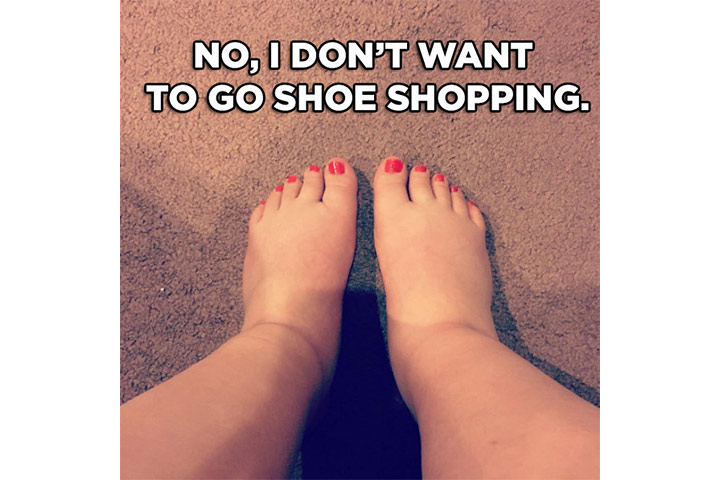 swollen feet meme