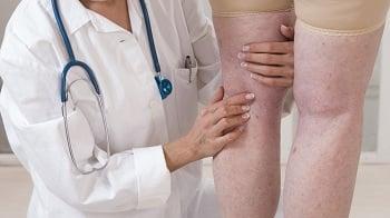 doctor treating swollen legs