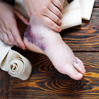 foot trauma with blood clotting