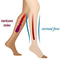 treat varicose veins with medical hoses