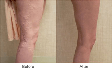image showing treatment for varicose veins