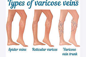types of varicose veins