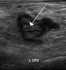 Deep vein thrombosis ultrasound showing blood clot in the middle of a vein. This is a serious condition that compression clothing can help prevent.
