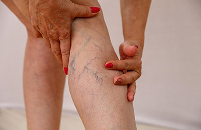 Woman with sever varicose veins