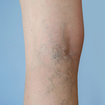 a person's leg showing varicose veins