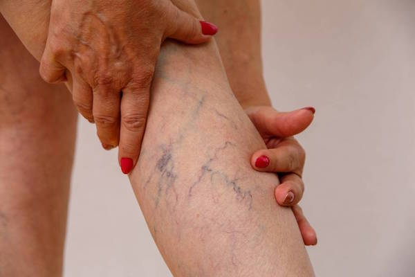 Example 1 of varicose veins