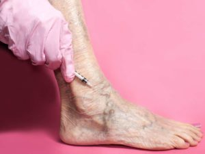 image of leg with varicose veins