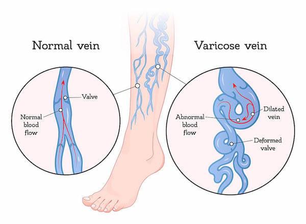 Graphic explaining varicose veins